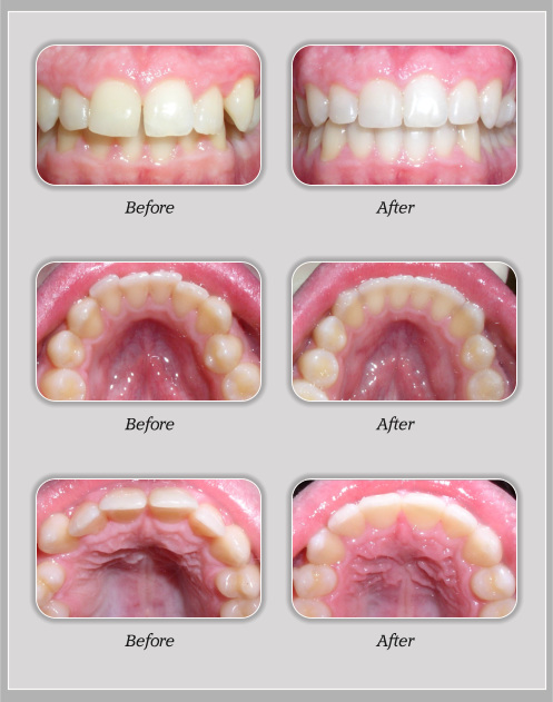 Braces Before And After 4